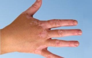 tn_1650_vitiligo-1343136340