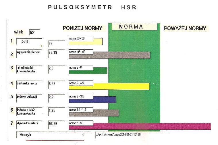 Puls Arytmia