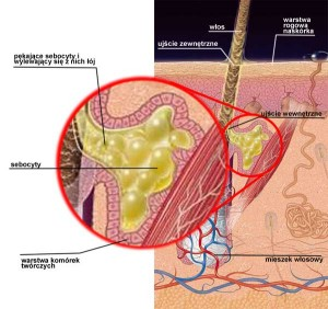 gruczollojowy1
