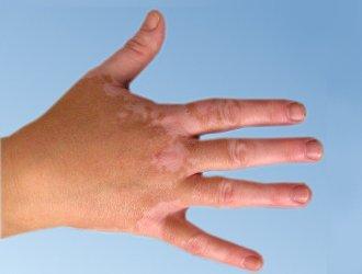 Zatrzymaj depigmentację skóry